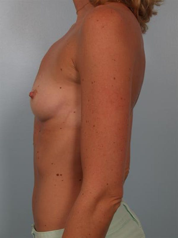 Breast Augmentation Gallery - Patient 1310426 - Image 3