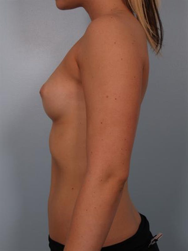Nipple/Areolar Surgery Gallery - Patient 1310425 - Image 5