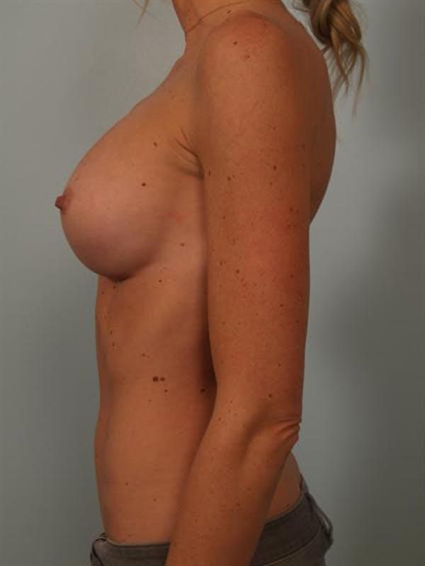 Breast Augmentation Gallery - Patient 1310426 - Image 4