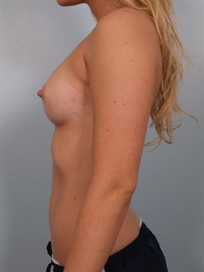 Nipple/Areolar Surgery Gallery - Patient 1310425 - Image 6