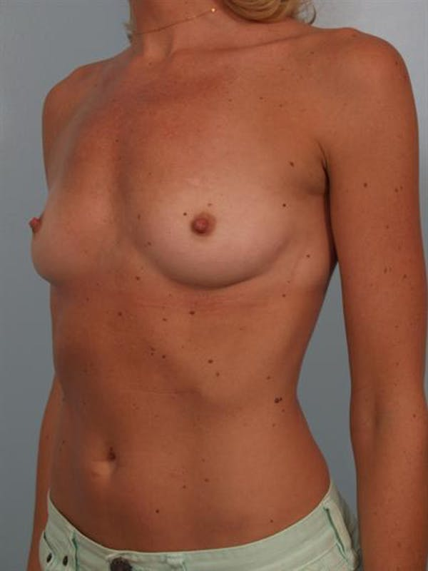Breast Augmentation Gallery - Patient 1310426 - Image 5