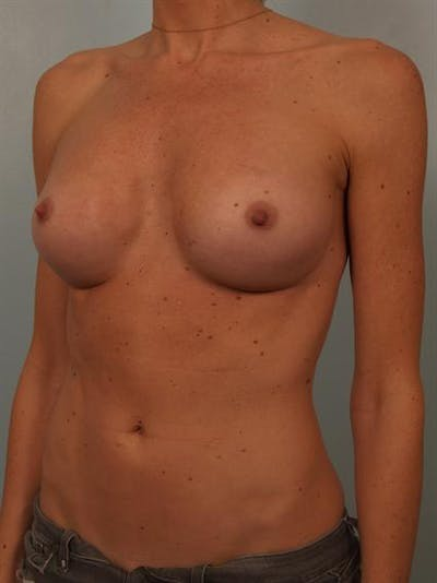 Breast Augmentation Gallery - Patient 1310426 - Image 6