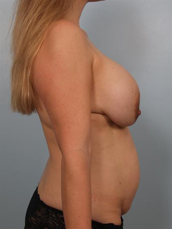 Breast Lift Gallery - Patient 1310427 - Image 3
