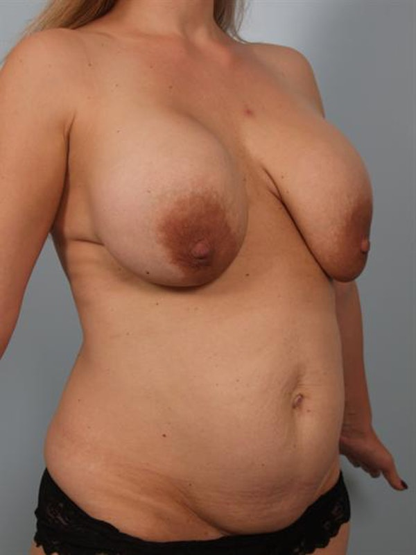 Breast Lift Gallery - Patient 1310427 - Image 5
