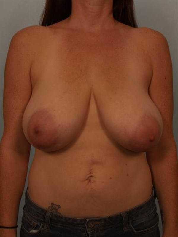 Breast Reduction Gallery - Patient 1310429 - Image 1