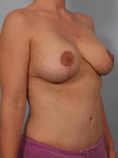 Breast Lift Gallery - Patient 1310427 - Image 6