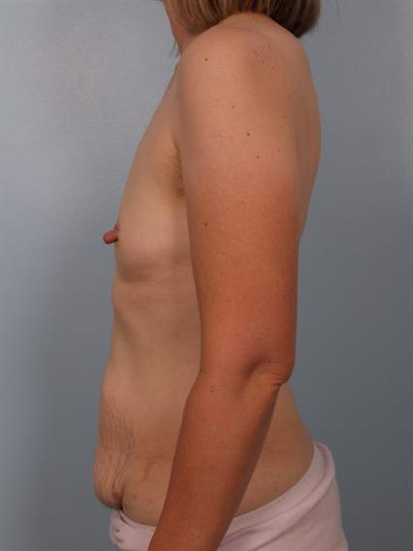 Nipple/Areolar Surgery Gallery - Patient 1310428 - Image 5