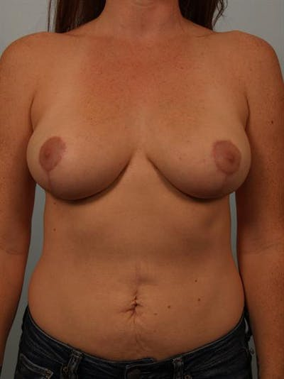 Breast Reduction Gallery - Patient 1310429 - Image 2