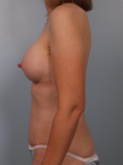Nipple/Areolar Surgery Gallery - Patient 1310428 - Image 6