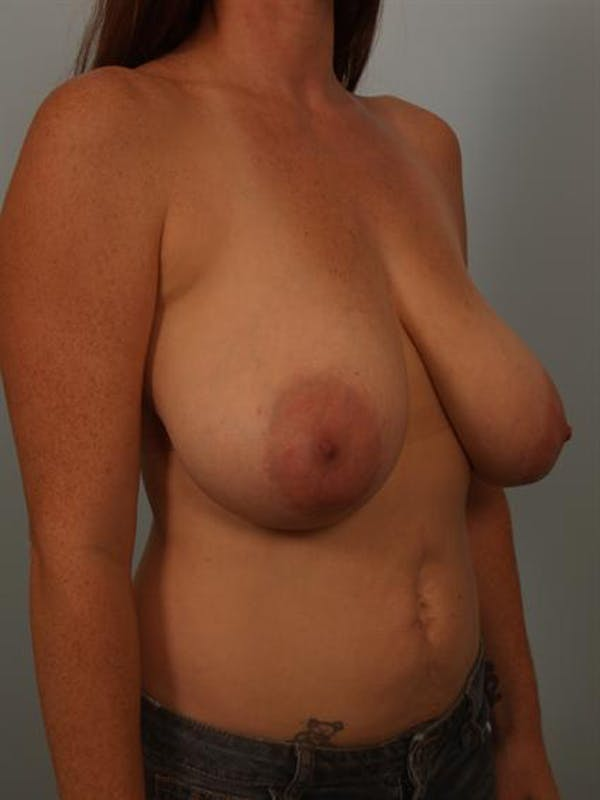 Breast Reduction Gallery - Patient 1310429 - Image 3