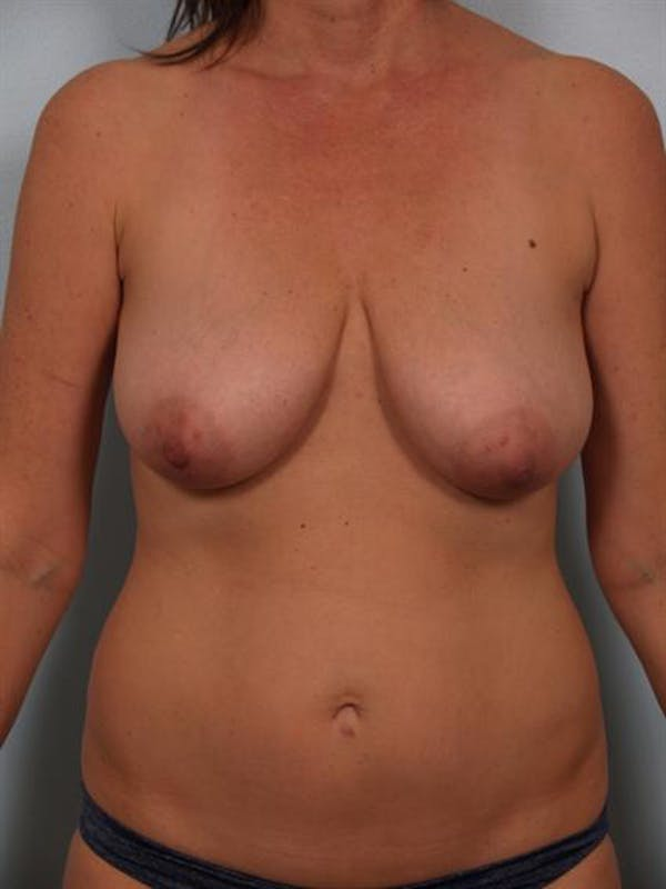 Breast Lift Gallery - Patient 1310431 - Image 1