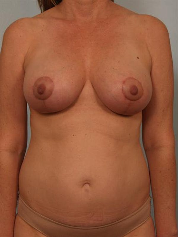 Breast Lift Gallery - Patient 1310431 - Image 2
