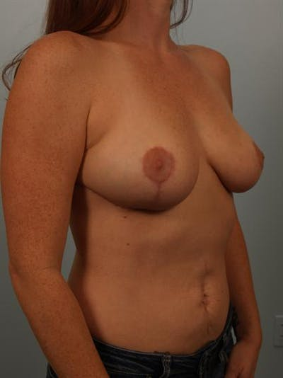 Breast Reduction Gallery - Patient 1310429 - Image 4