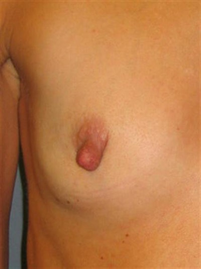 Nipple/Areolar Surgery Gallery - Patient 1310435 - Image 1