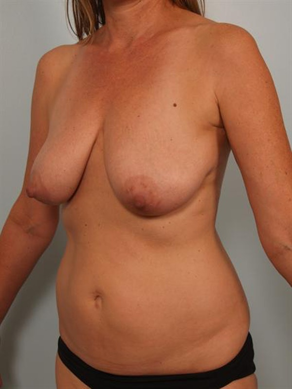 Breast Lift Gallery - Patient 1310431 - Image 3