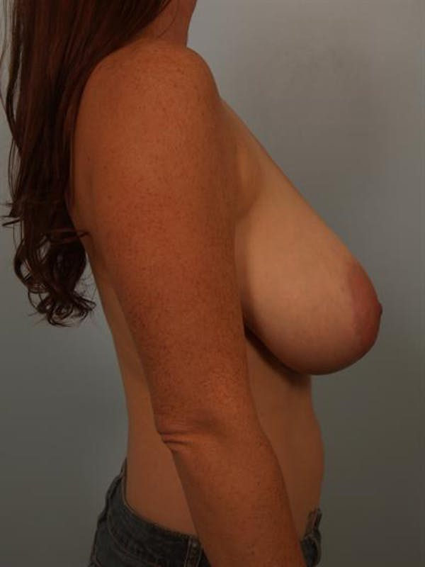 Breast Reduction Gallery - Patient 1310429 - Image 5