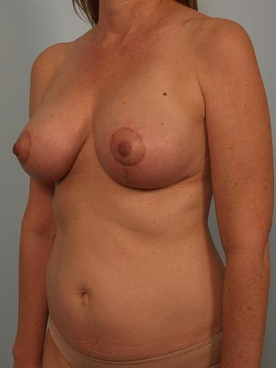 Breast Lift Gallery - Patient 1310431 - Image 4