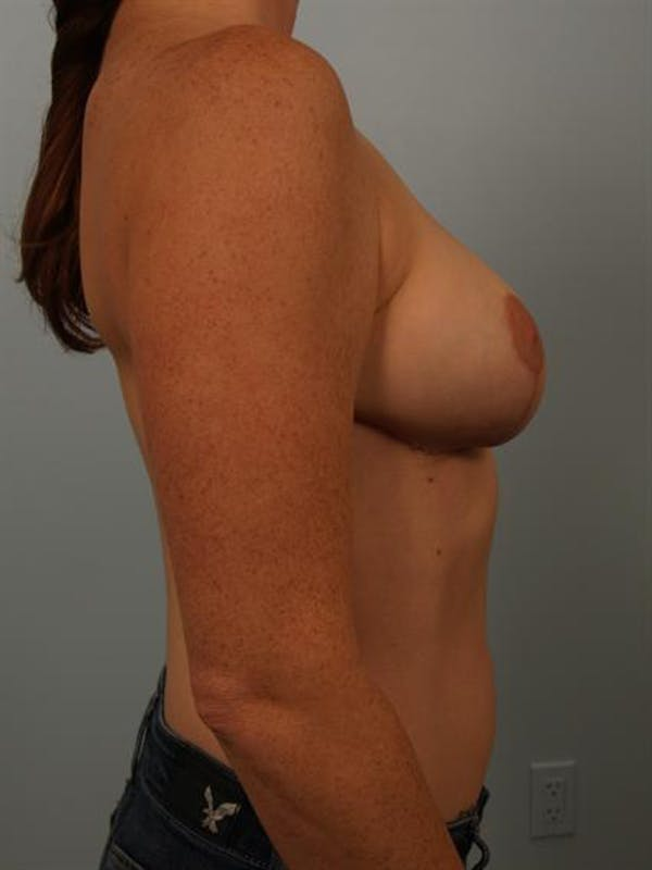 Breast Reduction Gallery - Patient 1310429 - Image 6