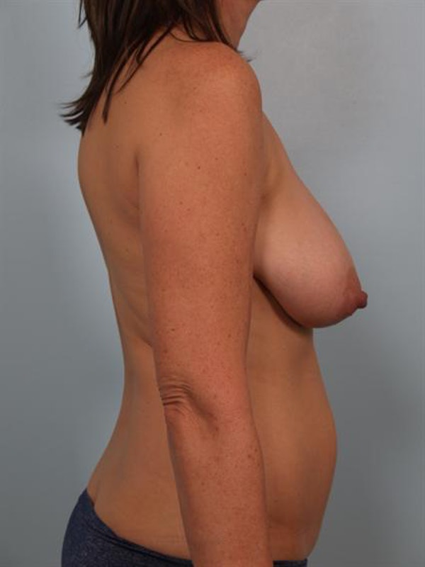 Breast Lift Gallery - Patient 1310431 - Image 5