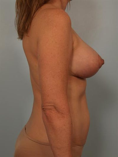 Breast Lift Gallery - Patient 1310431 - Image 6