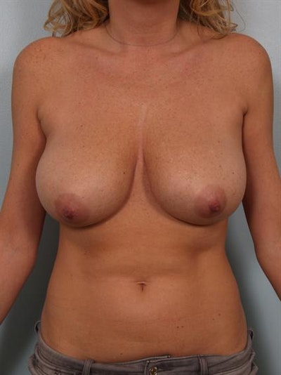 Breast Reduction Gallery - Patient 1310432 - Image 1