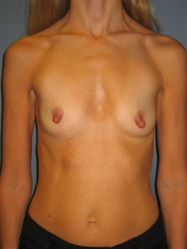 Nipple/Areolar Surgery Gallery - Patient 1310435 - Image 5