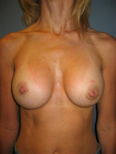 Nipple/Areolar Surgery Gallery - Patient 1310435 - Image 6