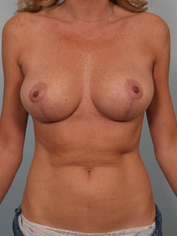 Breast Reduction Gallery - Patient 1310432 - Image 2