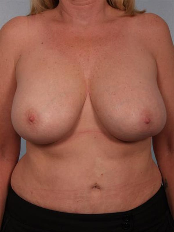 Breast Lift Gallery - Patient 1310433 - Image 1