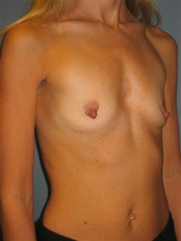 Nipple/Areolar Surgery Gallery - Patient 1310435 - Image 7