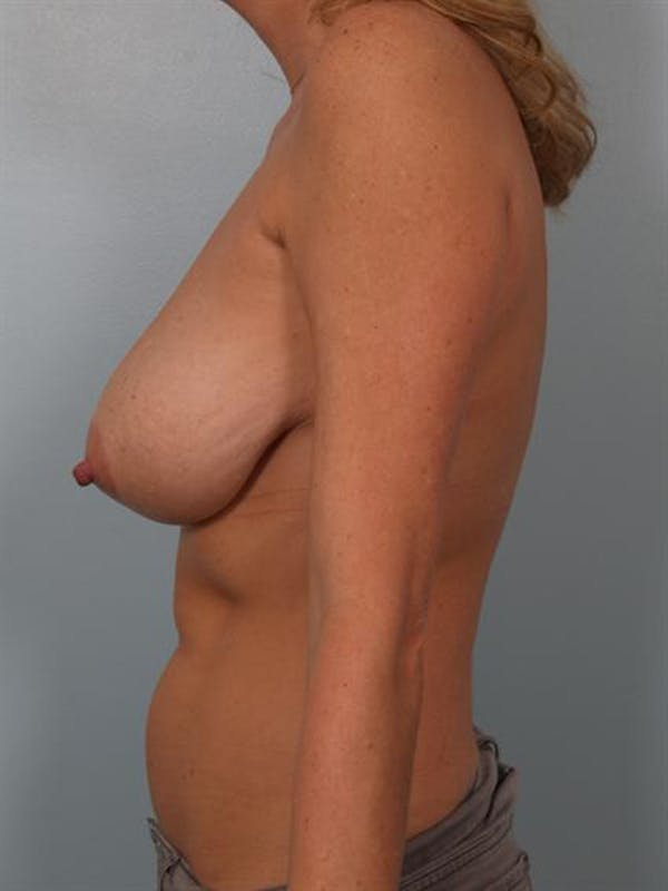 Breast Reduction Gallery - Patient 1310432 - Image 3