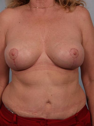 Breast Lift Gallery - Patient 1310433 - Image 2