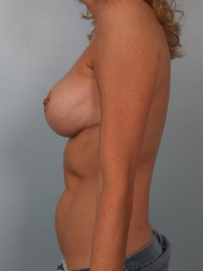 Breast Reduction Gallery - Patient 1310432 - Image 4