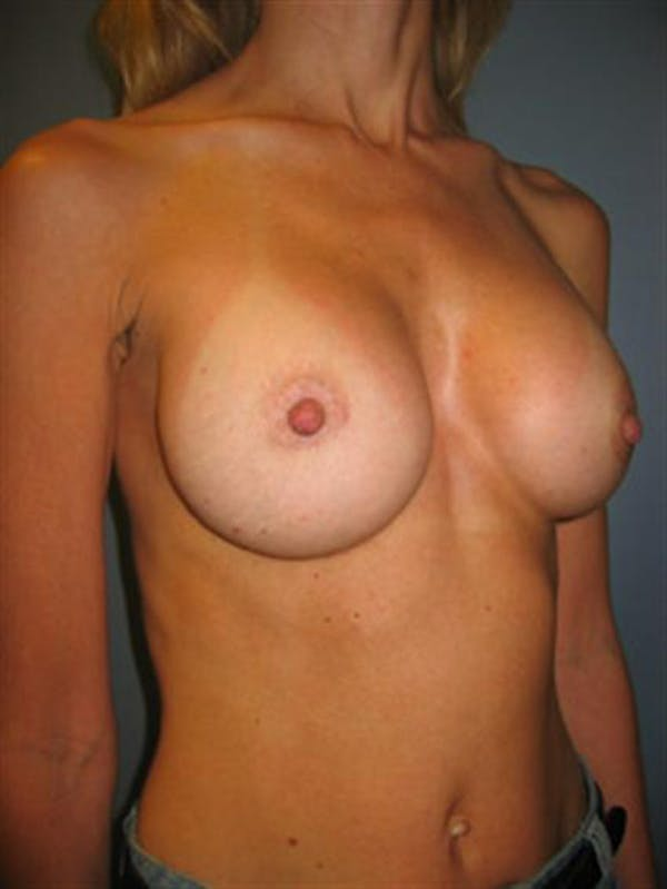 Nipple/Areolar Surgery Gallery - Patient 1310435 - Image 8
