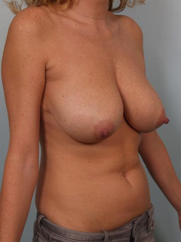 Breast Reduction Gallery - Patient 1310432 - Image 5
