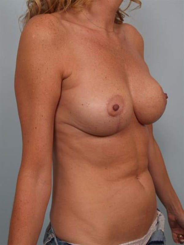 Breast Reduction Gallery - Patient 1310432 - Image 6