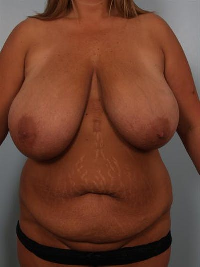 Breast Reduction Gallery - Patient 1310436 - Image 1