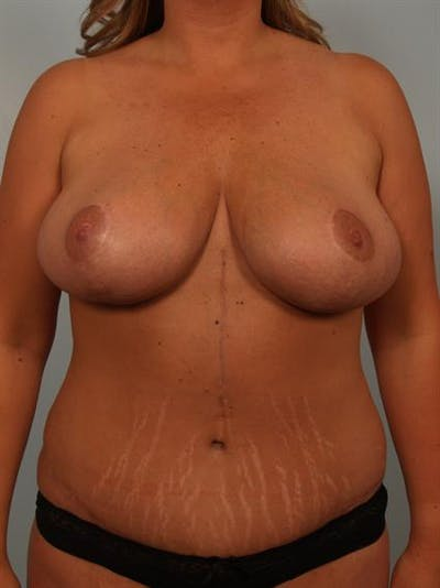 Breast Reduction Gallery - Patient 1310436 - Image 2