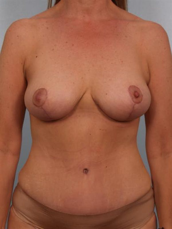 Breast Lift Gallery - Patient 1310437 - Image 2