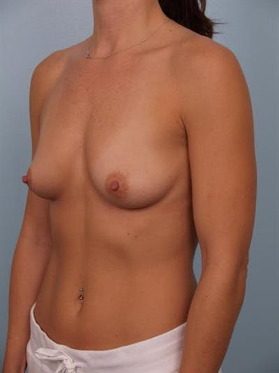 Breast Augmentation Gallery - Patient 1310439 - Image 1