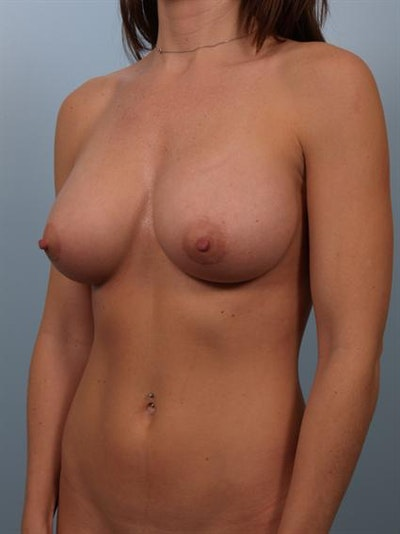 Breast Augmentation Gallery - Patient 1310439 - Image 2