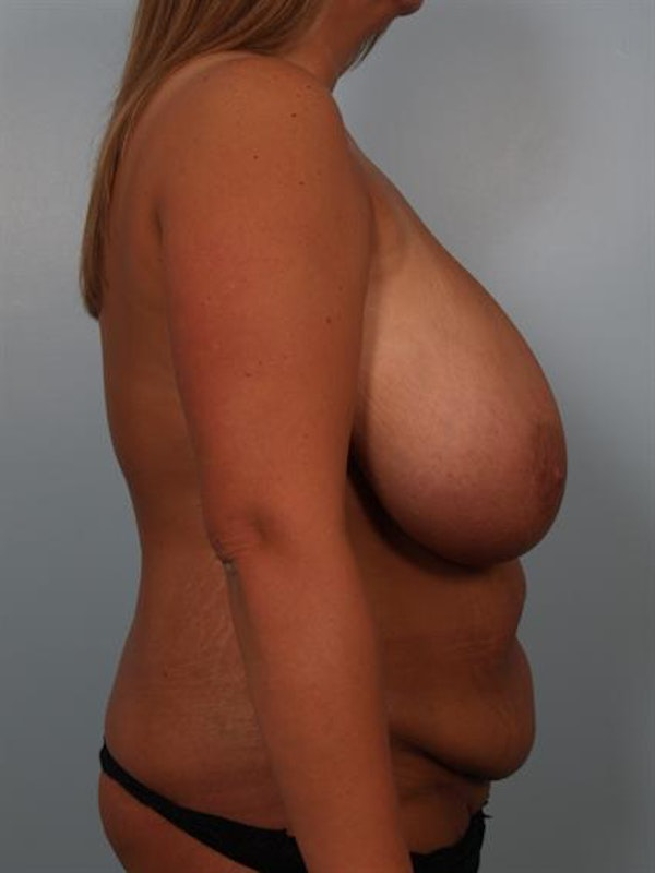 Breast Reduction Gallery - Patient 1310436 - Image 5