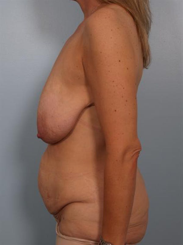Breast Lift Gallery - Patient 1310437 - Image 3