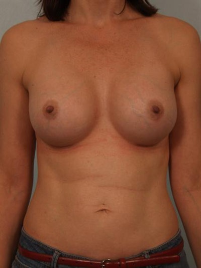 Nipple/Areolar Surgery Gallery - Patient 1310438 - Image 2