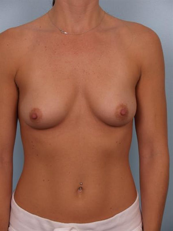 Breast Augmentation Gallery - Patient 1310439 - Image 3