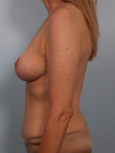 Breast Lift Gallery - Patient 1310437 - Image 4