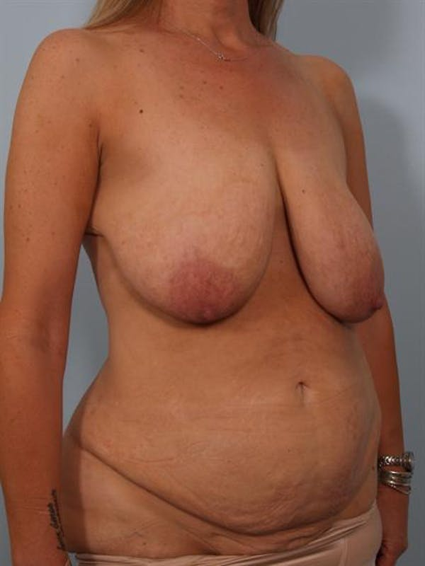 Breast Lift Gallery - Patient 1310437 - Image 5