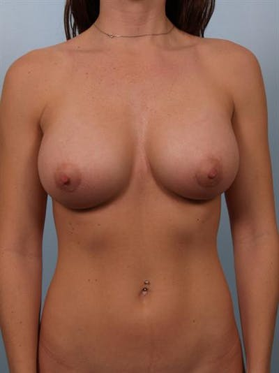 Breast Augmentation Gallery - Patient 1310439 - Image 4