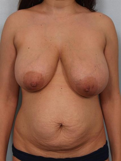 Breast Reduction Gallery - Patient 1310441 - Image 1