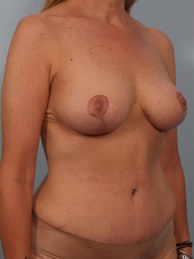 Breast Lift Gallery - Patient 1310437 - Image 6